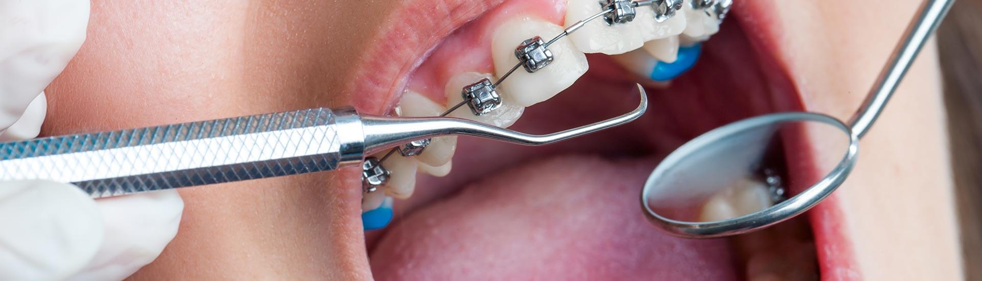 Caring for Teeth with Braces