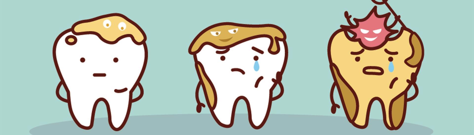 Why Do I Get So Many Cavities?