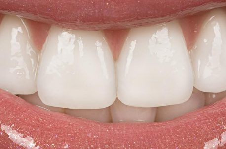 Things to Know When Choosing Cosmetic Dental Veneers
