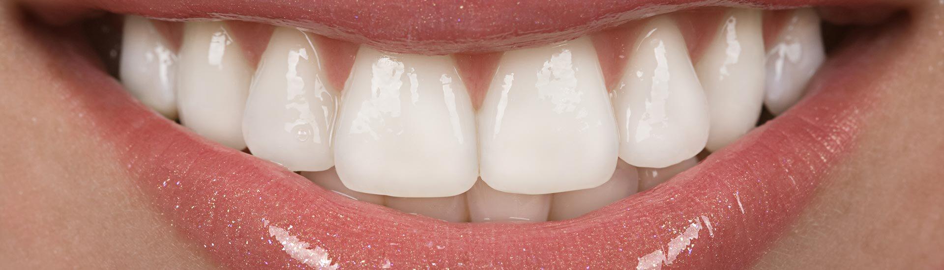 Things to Know When Choosing Cosmetic Dental Veneers