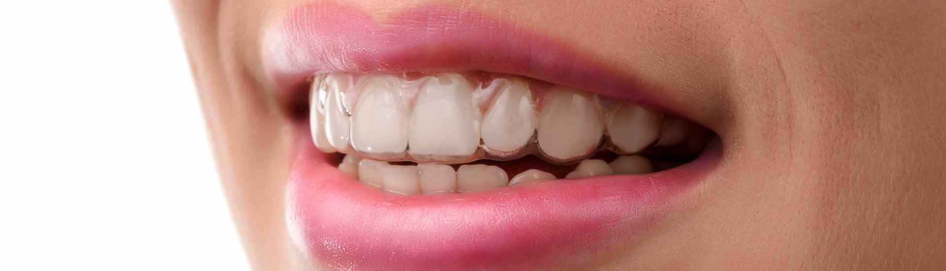 3 Benefits of Invisalign