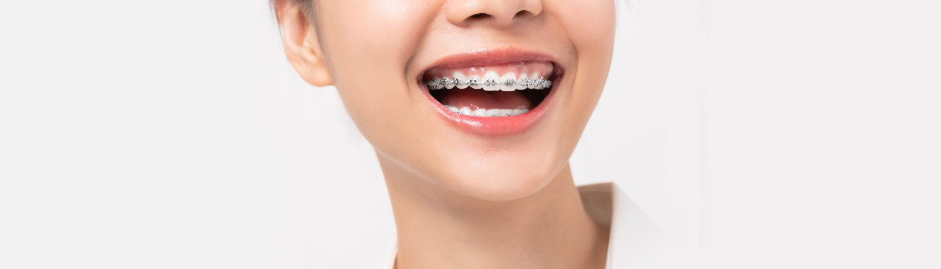 Orthodontics: Do Braces and Other Orthodontic Devices Work?